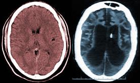 Schiavo brain scan